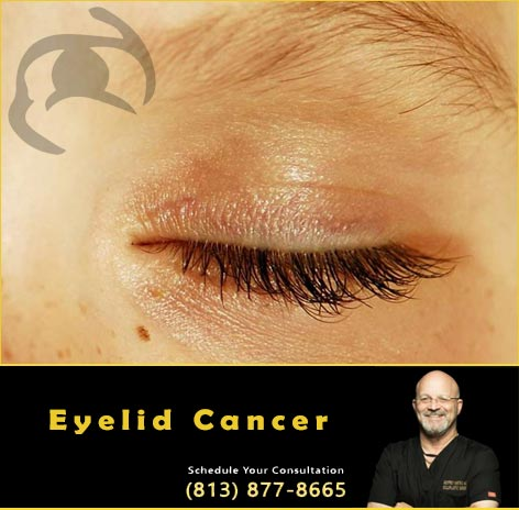 Dr Kwitko Eyelid Cancer Surgeon