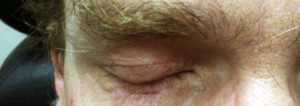 Post-op Reconstructive Eyelid Surgery by Dr Kwitko